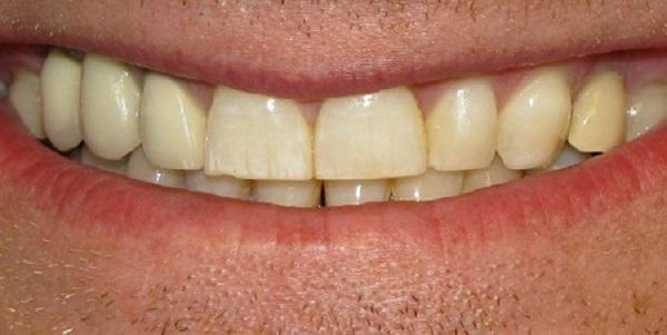 Granulom zuba – upala u korijenu