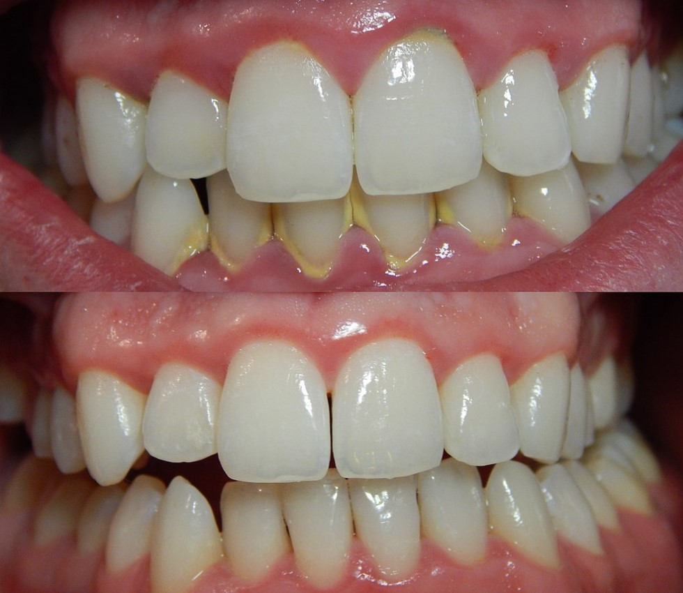 Parodontoza ili parodontitis