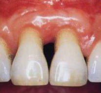 Parodontoza je jedna od najčešćih bolesti zuba